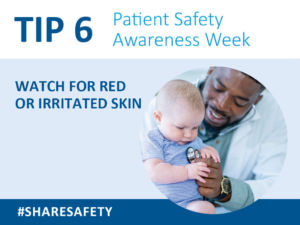 If you notice any new redness or irritation on your child's skin, notify your child's caregivers. Ask what steps can be taken to prevent harm to the skin.